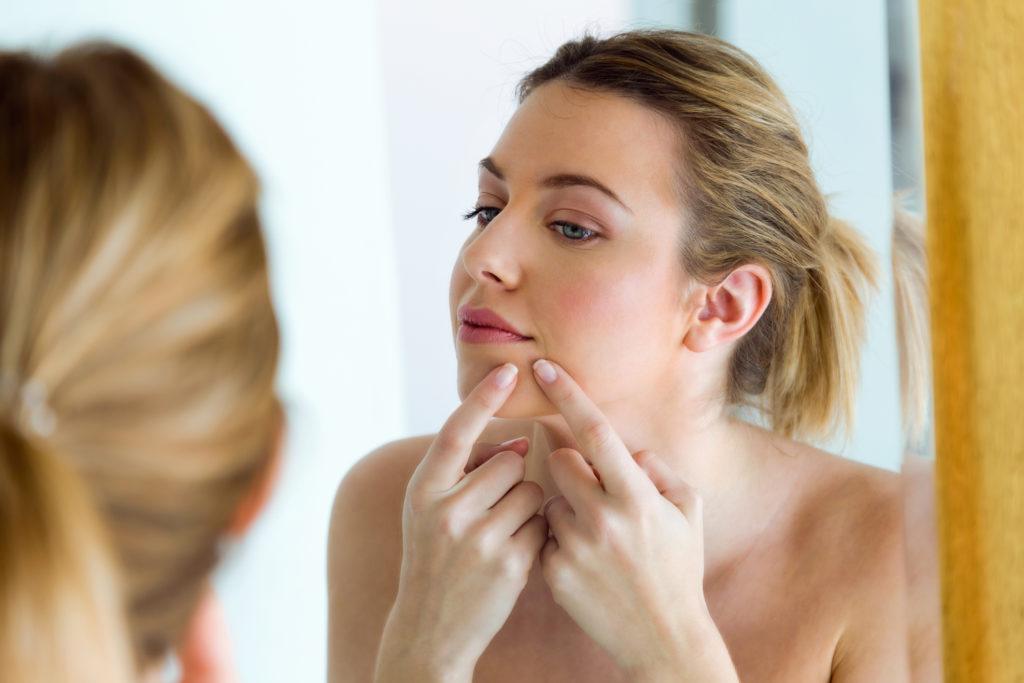 Как избавиться от шрамов после угревой сыпи